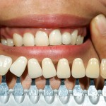 dental implants san francisco