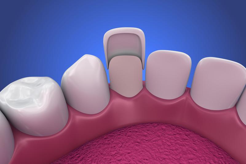 dental veneers install