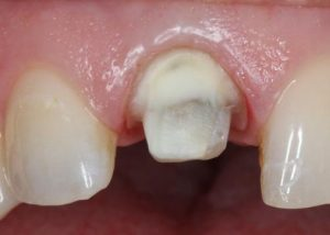 dental cysts: understanding and treating cysts, Sphenoid