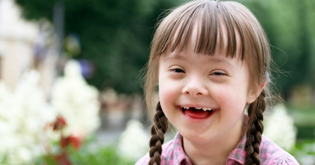 down syndrome common dental problems
