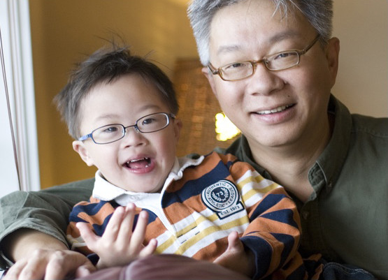 down syndrome dental care