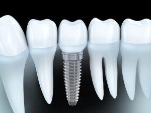 emergency dentist oswego il