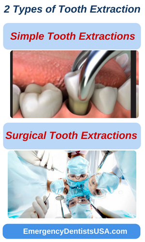 emergency tooth extractions types