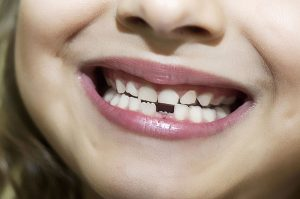 front teeth do not come into contact with their bottom teeth