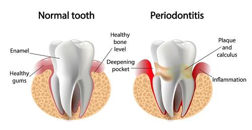 gum disease image