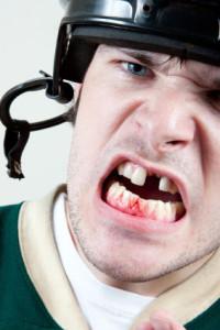 tand uitgeslagen gat in mond