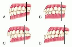 malocclusion of teeth 1