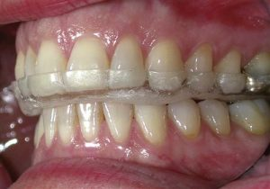 occlusal appliance image