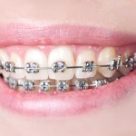 orthodontist san antonio tx
