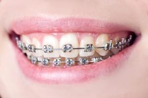 orthodontist san antonio tx