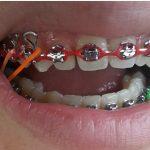 overbite braces featured image