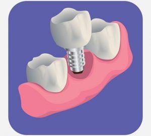 teeth implant image