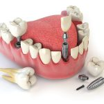 all on 4 dental implants featured image