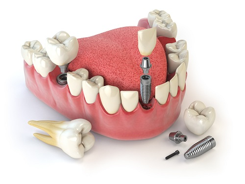 teeth implant image