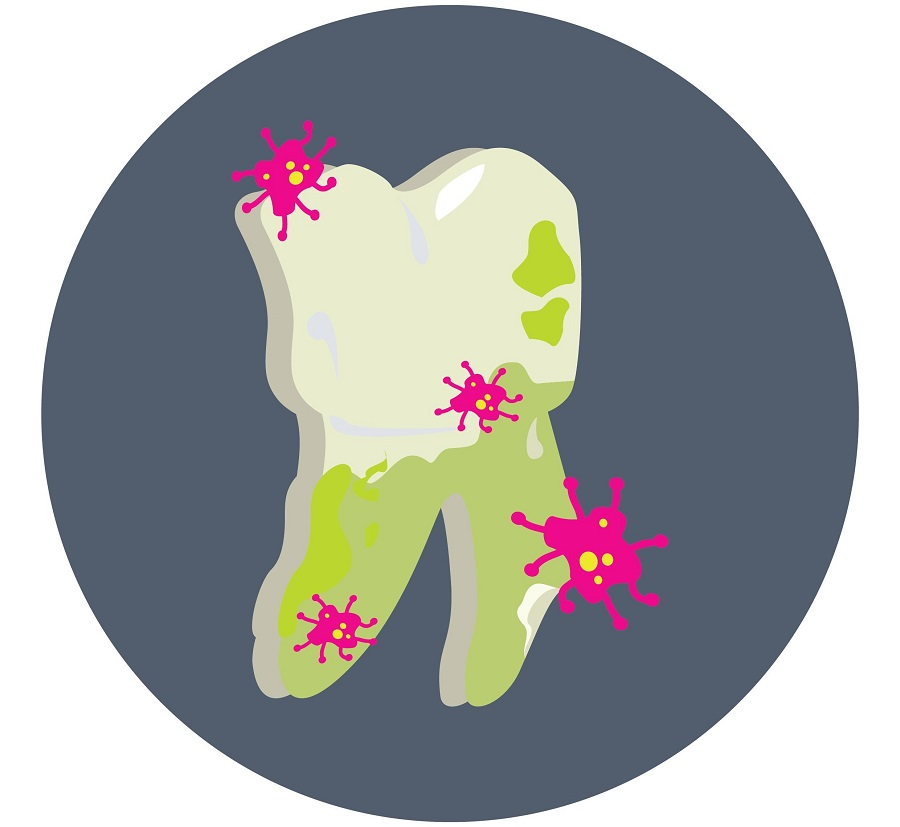 teeth infection image