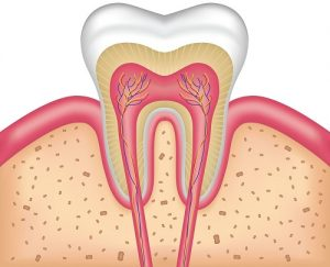 teeth root canal image