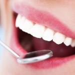teeth whitening detroit mi