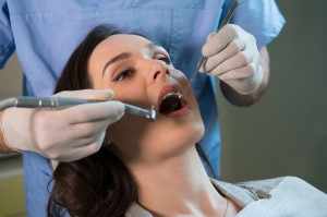 teeth whitening san jose ca