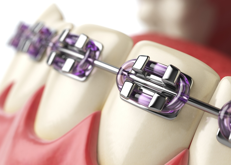 teeth with braces image