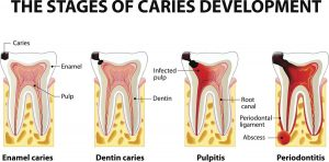 the Periodontal Disease Stages
