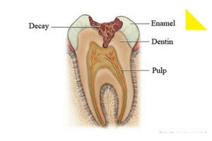 tooth decay stages 1