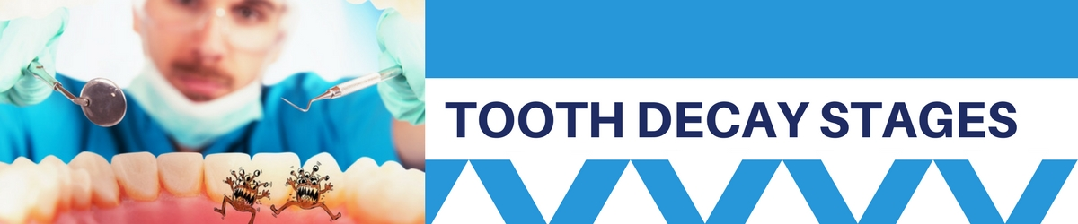 tooth decay stages header