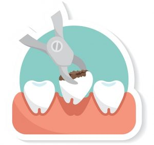 tooth extraction image