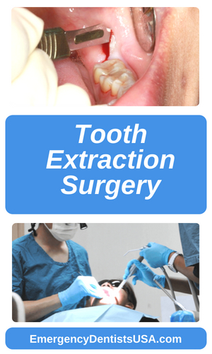 tooth extraction surgery