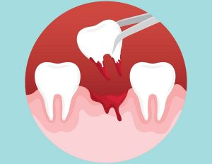 tooth removing image