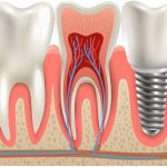 tooth replacement options featured image