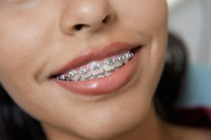 traditional metal braces image
