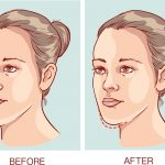 underbite causes and treatment featured image