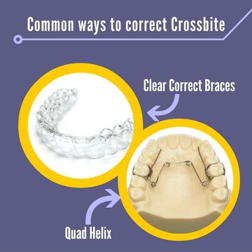 ways to correct crossbite
