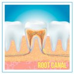what is a root canal